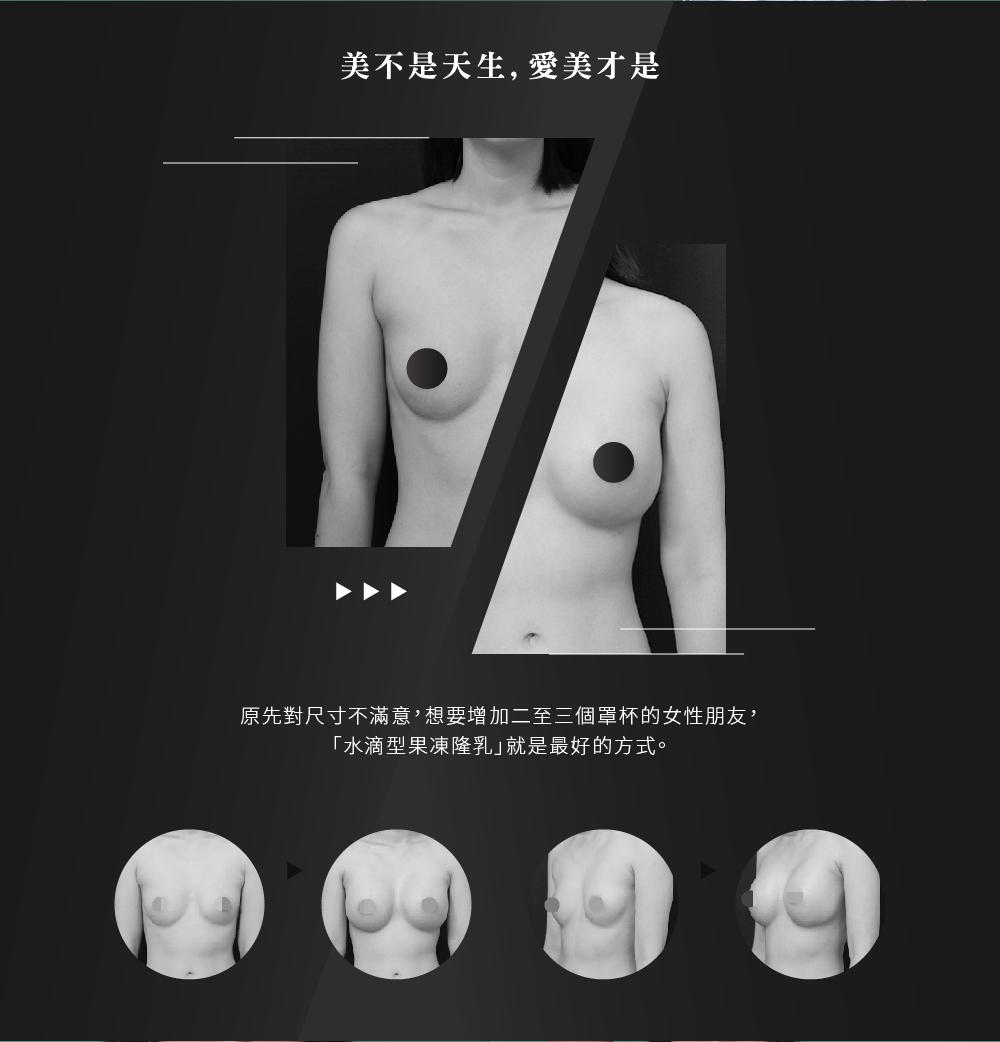 水滴型果凍矽膠隆乳術前術後照片