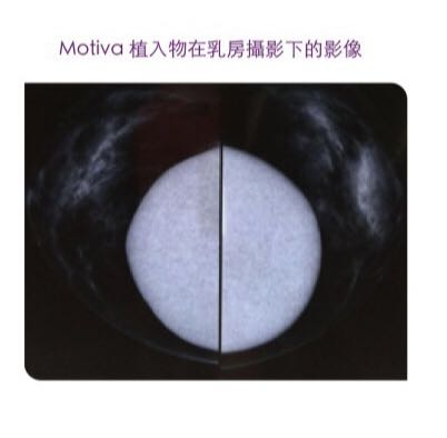 魔滴Motiva植入物在乳房的攝影