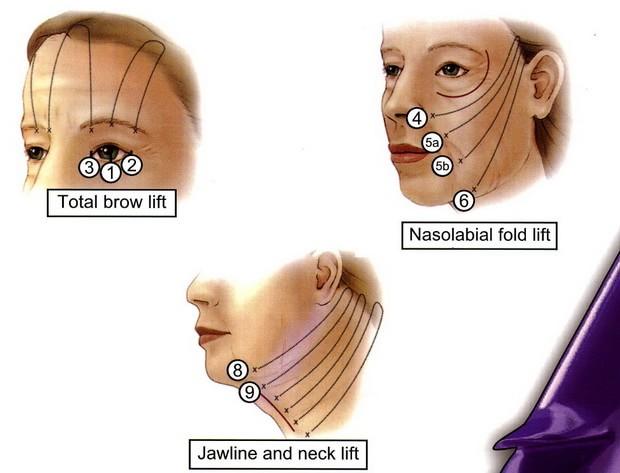 臉頰拉提手術位置