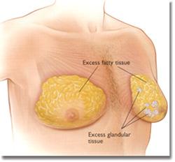 男性女乳症成因