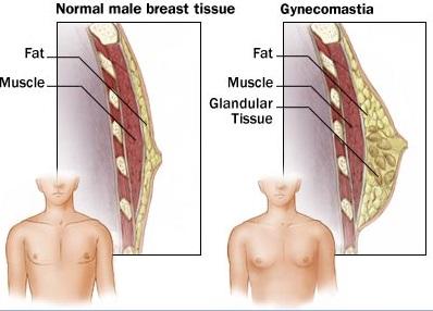 男性女乳症是什麼