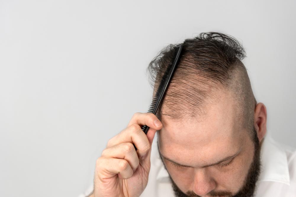 m字禿怎麼辦